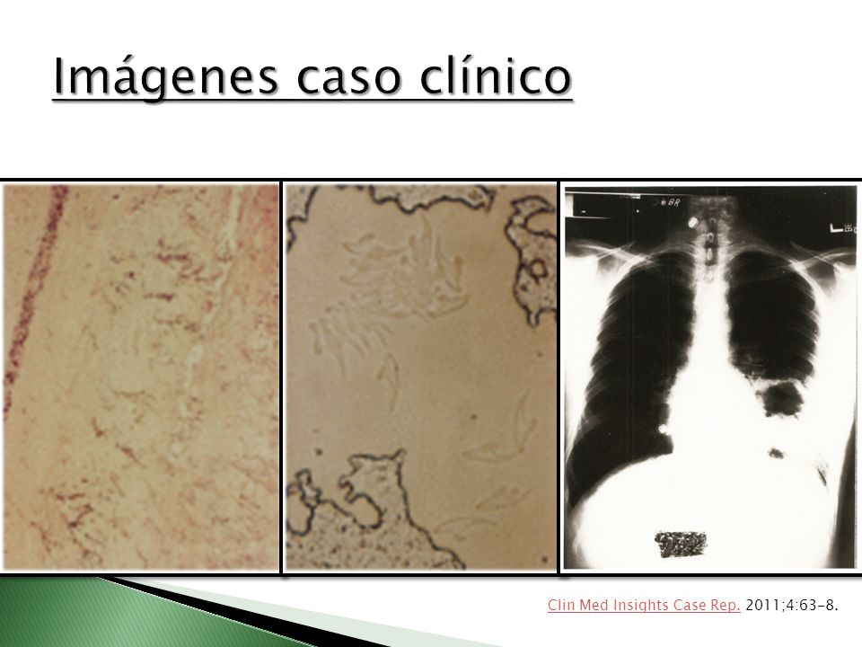 Imágenes caso clínico Clin Med Insights Case Rep. 2011;4:63-8.