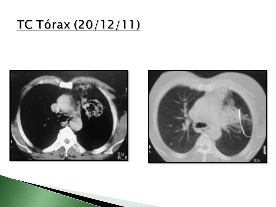 TC Tórax (20/12/11)