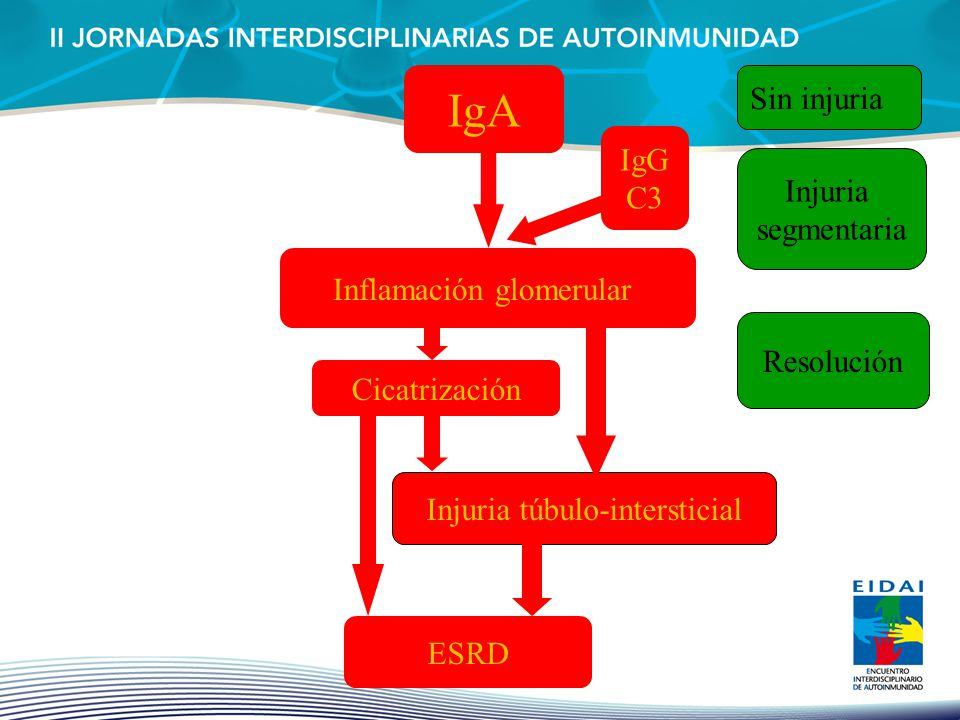 IgA Sin injuria IgG C3 Injuria segmentaria Inflamación glomerular