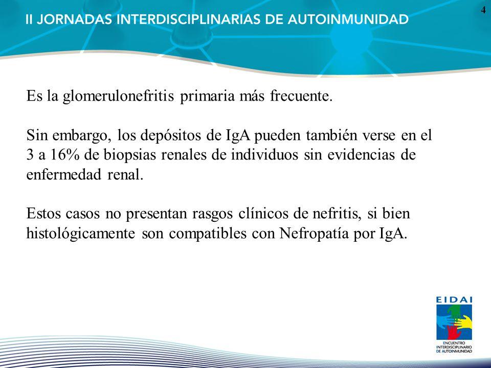 Es la glomerulonefritis primaria más frecuente.