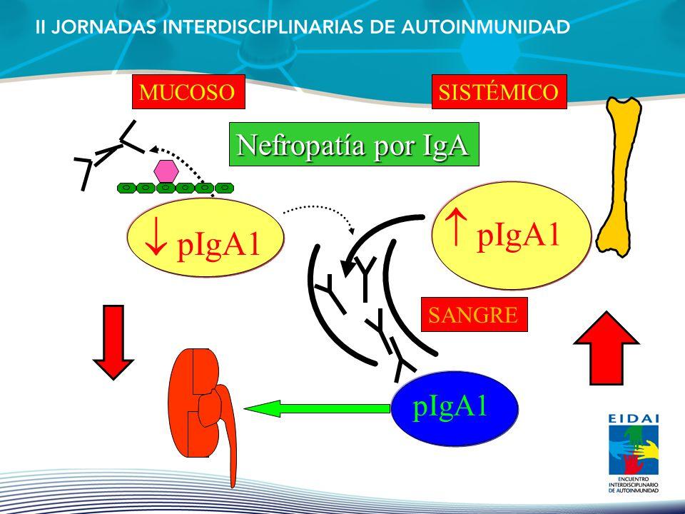 MUCOSO SISTÉMICO Nefropatía por IgA  pIgA1  pIgA1 SANGRE pIgA1
