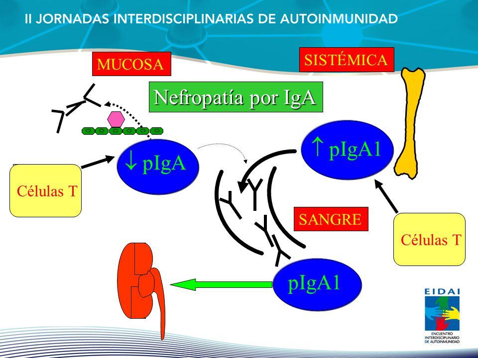  pIgA1 Nefropatía por IgA  pIgA pIgA1 SISTÉMICA MUCOSA Células T
