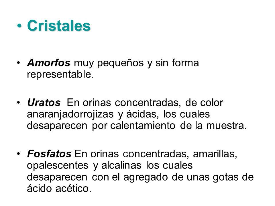 Cristales Amorfos muy pequeños y sin forma representable.