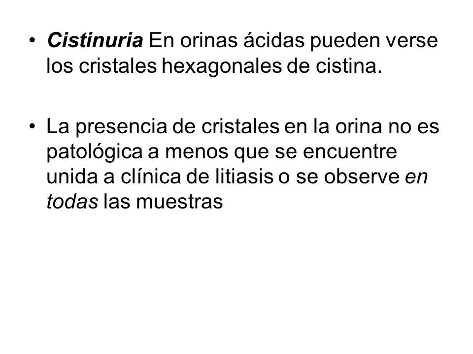 Cistinuria En orinas ácidas pueden verse los cristales hexagonales de cistina.