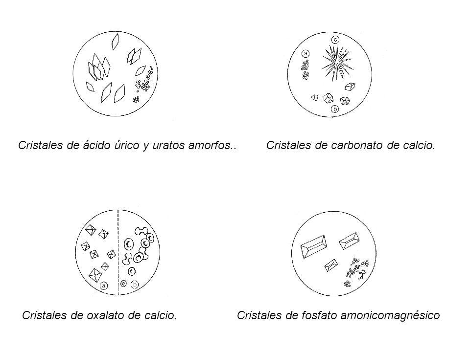 Cristales de ácido úrico y uratos amorfos..