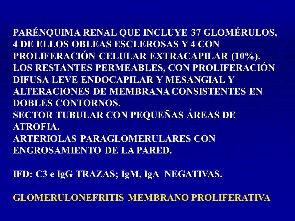 PARÉNQUIMA RENAL QUE INCLUYE 37 GLOMÉRULOS, 4 DE ELLOS OBLEAS ESCLEROSAS Y 4 CON PROLIFERACIÓN CELULAR EXTRACAPILAR (10%).