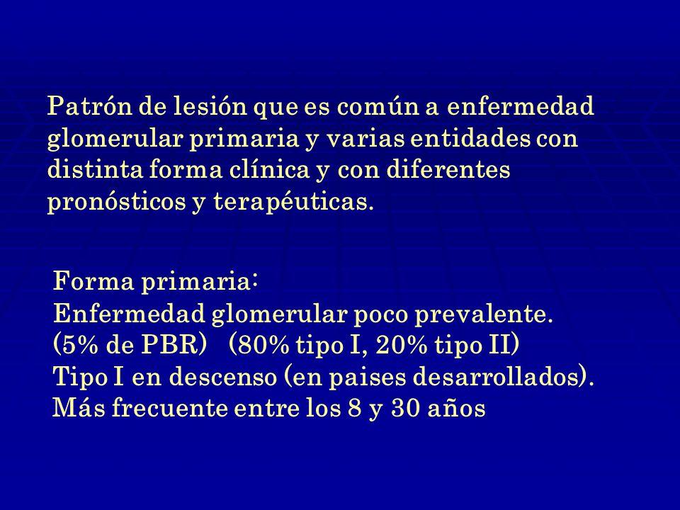 Patrón de lesión que es común a enfermedad glomerular primaria y varias entidades con distinta forma clínica y con diferentes pronósticos y terapéuticas.