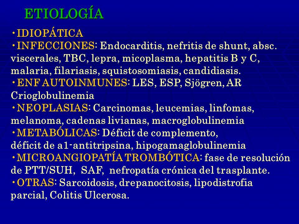 ETIOLOGÍA IDIOPÁTICA. INFECCIONES: Endocarditis, nefritis de shunt, absc. viscerales, TBC, lepra, micoplasma, hepatitis B y C,