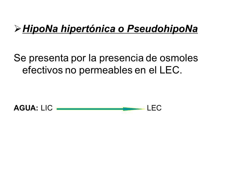 HipoNa hipertónica o PseudohipoNa