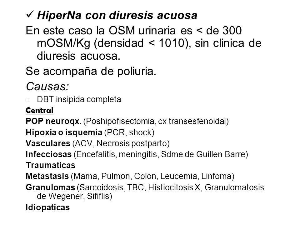 HiperNa con diuresis acuosa