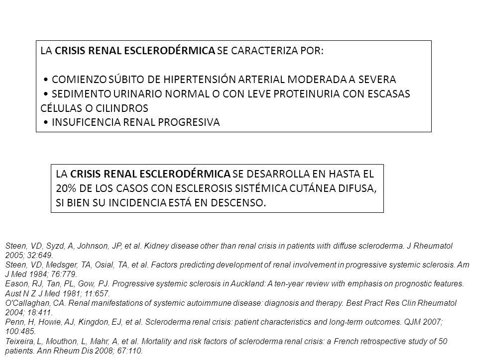 LA CRISIS RENAL ESCLERODÉRMICA SE CARACTERIZA POR:
