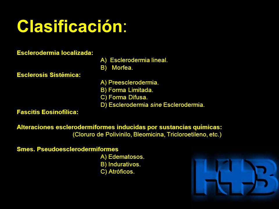 Clasificación: Esclerodermia localizada: A) Esclerodermia lineal.
