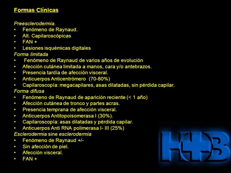 Formas Clínicas Preesclerodermia. Fenómeno de Raynaud.