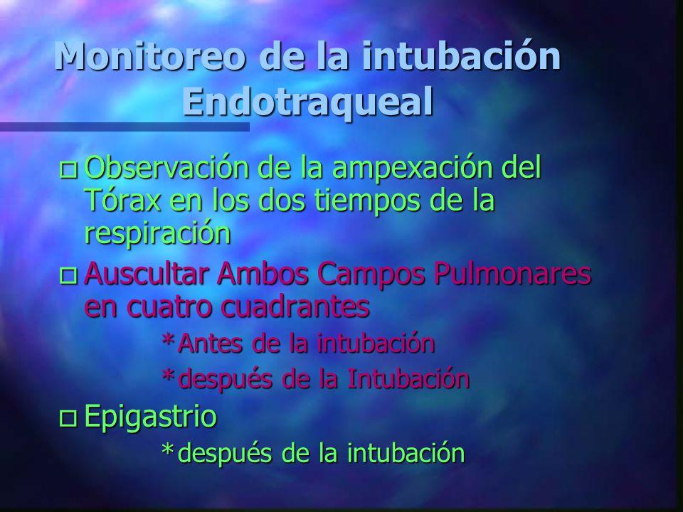 Monitoreo de la intubación Endotraqueal