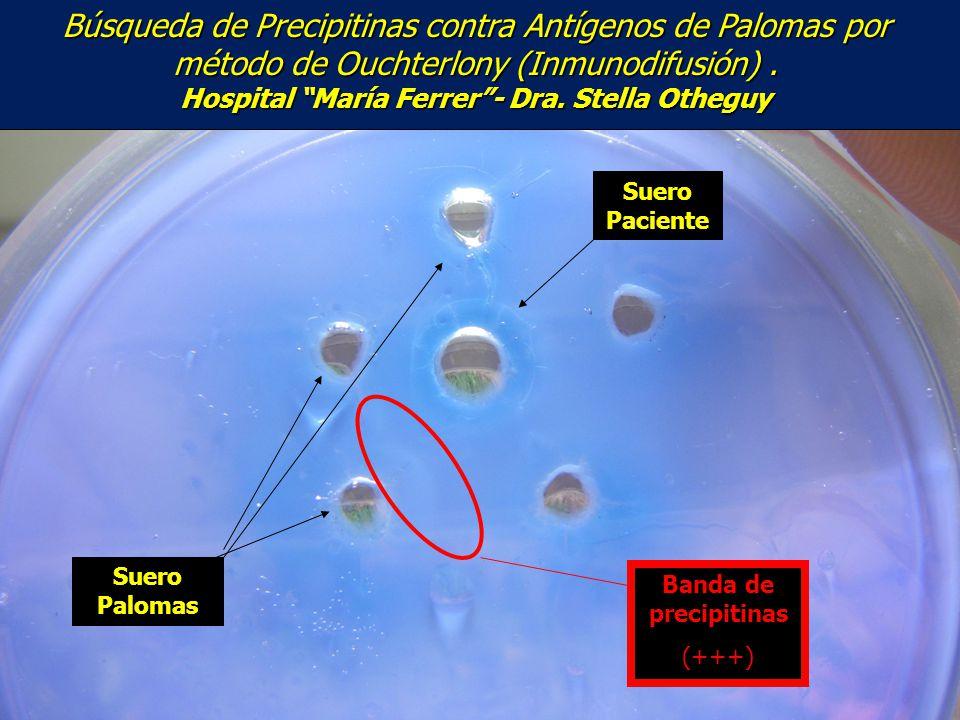 Búsqueda de Precipitinas contra Antígenos de Palomas por método de Ouchterlony (Inmunodifusión) . Hospital María Ferrer - Dra. Stella Otheguy
