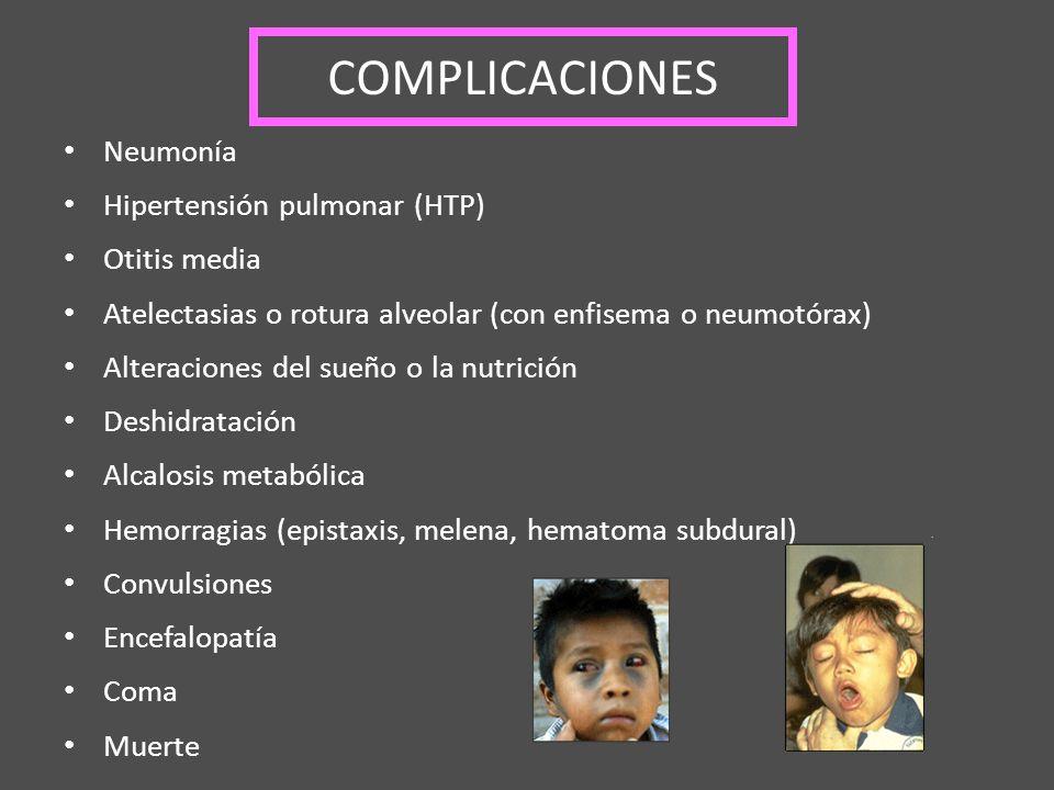 COMPLICACIONES Neumonía Hipertensión pulmonar (HTP) Otitis media