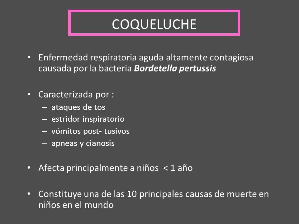 COQUELUCHE Enfermedad respiratoria aguda altamente contagiosa causada por la bacteria Bordetella pertussis.