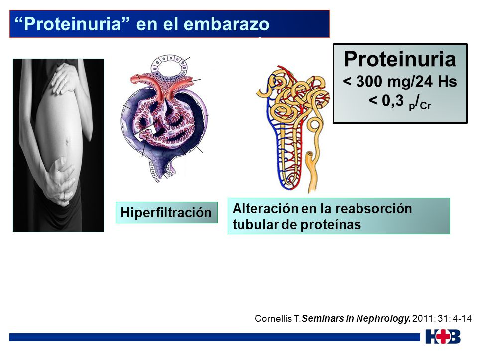 Proteinuria Proteinuria en el embarazo < 300 mg/24 Hs