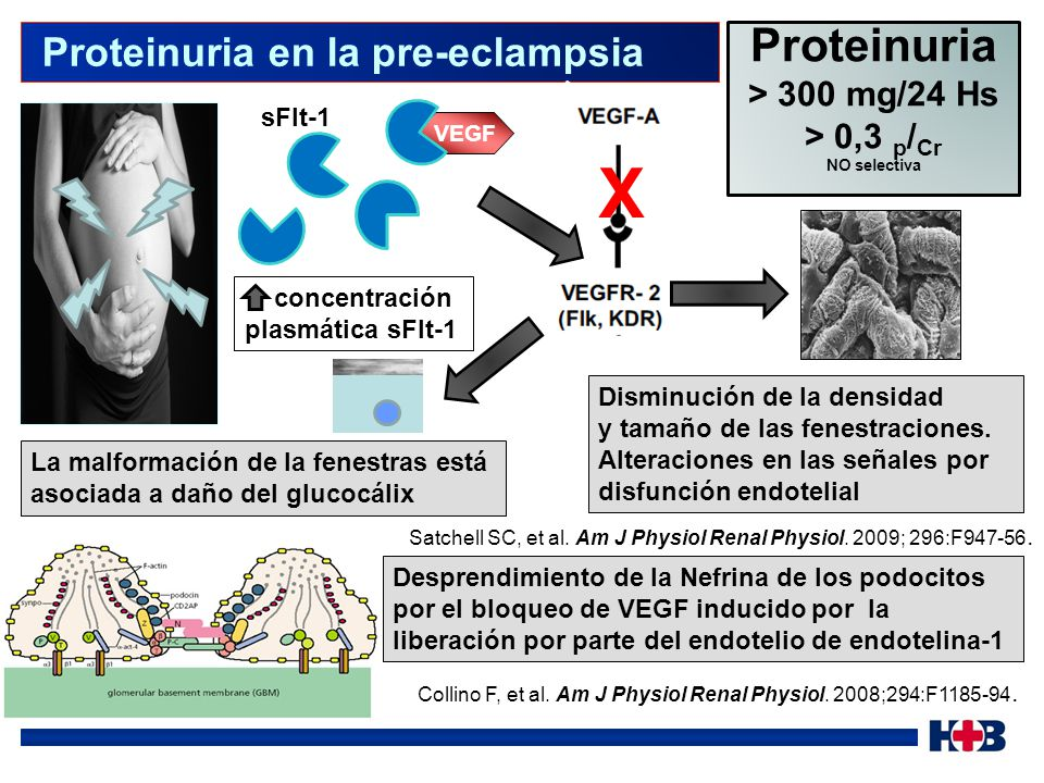 X Proteinuria Proteinuria en la pre-eclampsia > 300 mg/24 Hs
