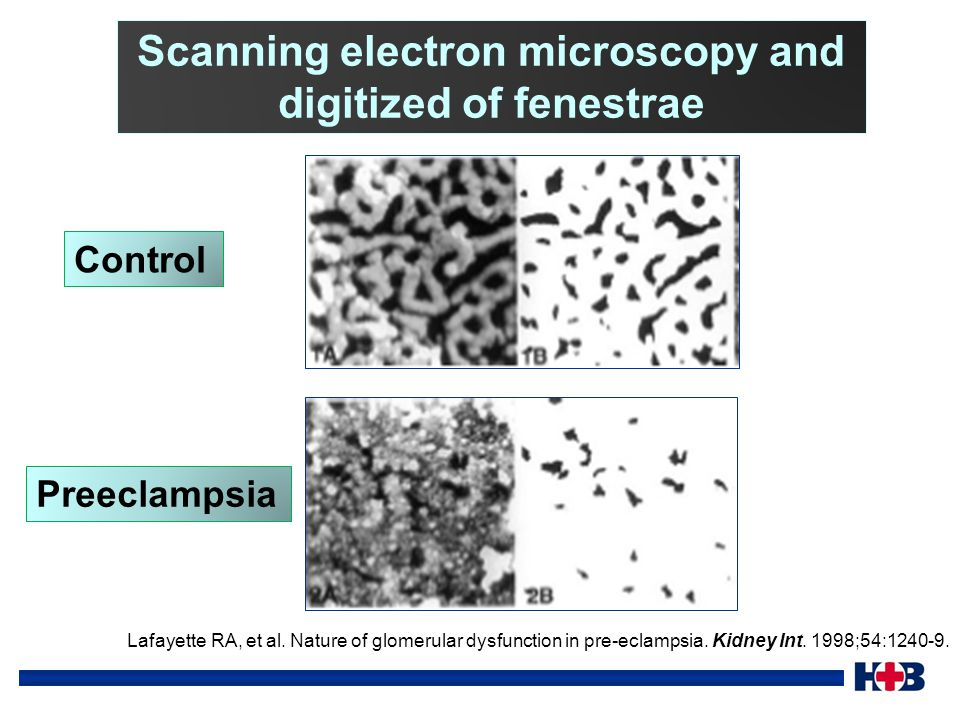 Scanning electron microscopy and digitized of fenestrae