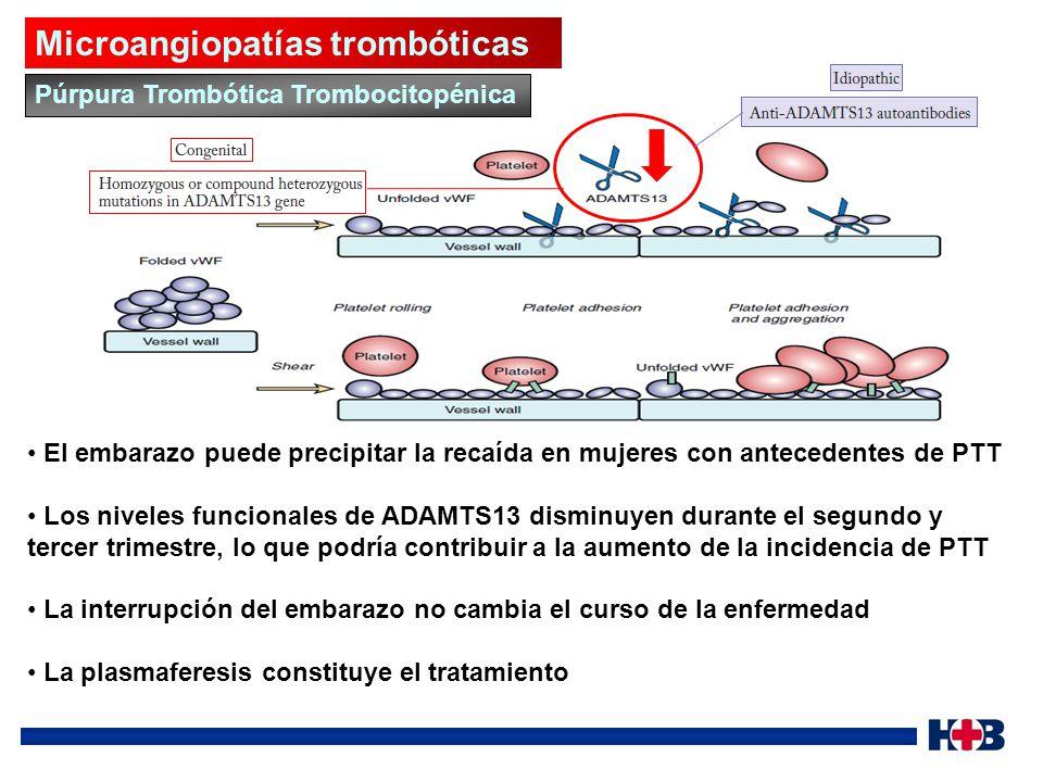 Microangiopatías trombóticas