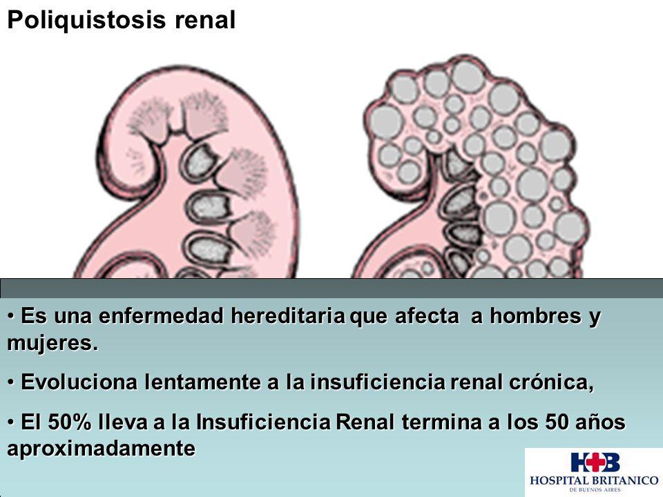 Poliquistosis renal Es una enfermedad hereditaria que afecta a hombres y mujeres. Evoluciona lentamente a la insuficiencia renal crónica,