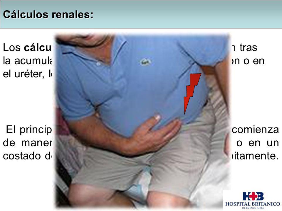 : Cálculos renales: