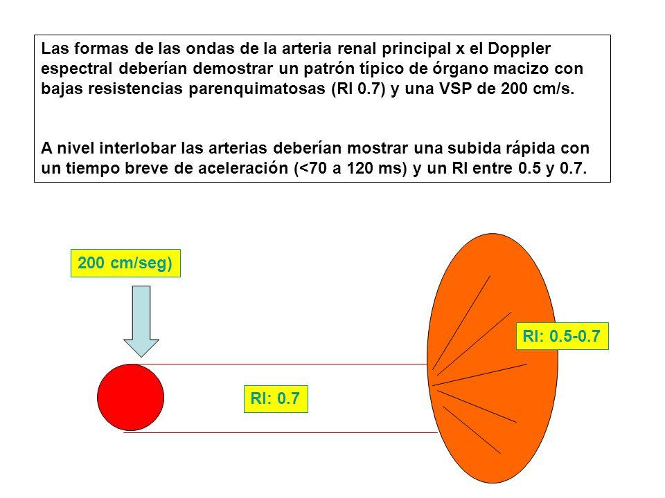 Las formas de las ondas de la arteria renal principal x el Doppler espectral deberían demostrar un patrón típico de órgano macizo con bajas resistencias parenquimatosas (RI 0.7) y una VSP de 200 cm/s.