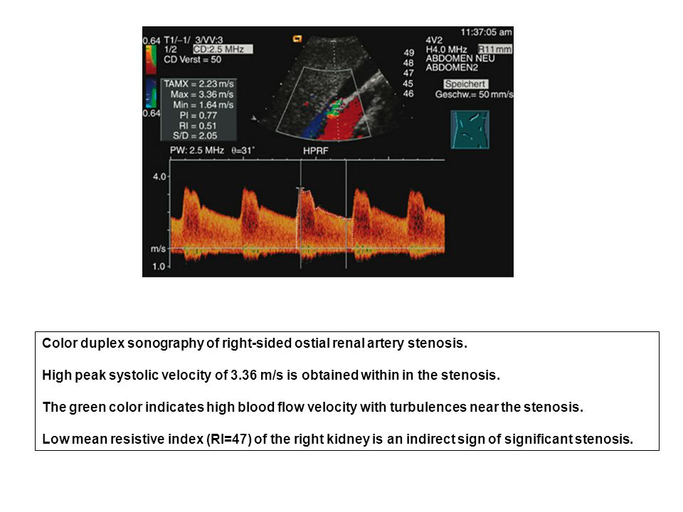 Color duplex sonography of right-sided ostial renal artery stenosis.