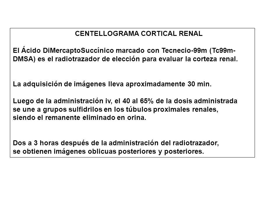 CENTELLOGRAMA CORTICAL RENAL