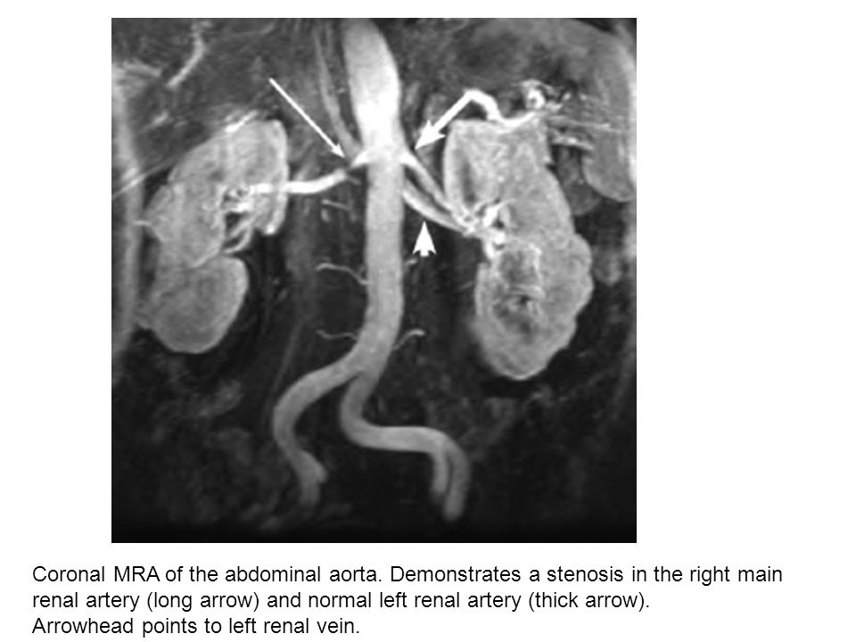 Coronal MRA of the abdominal aorta