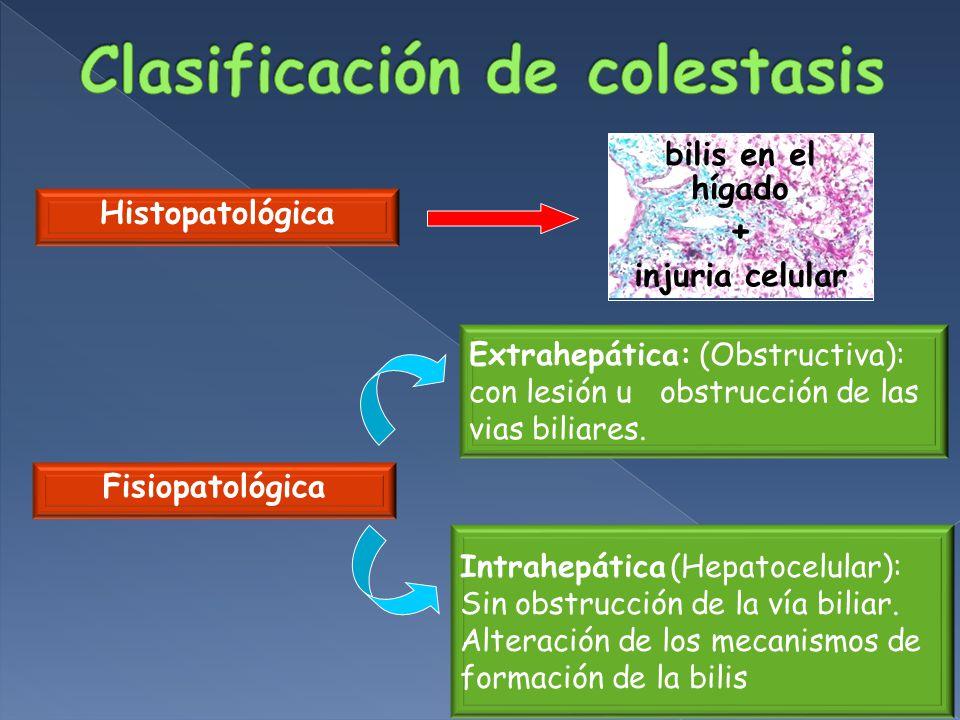 Clasificación de colestasis