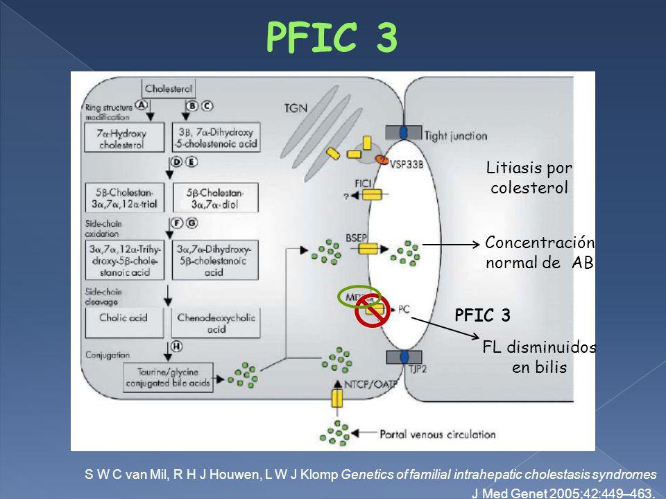 PFIC 3 Litiasis por colesterol Concentración normal de AB PFIC 3
