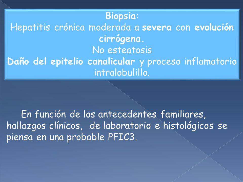 Hepatitis crónica moderada a severa con evolución cirrógena.