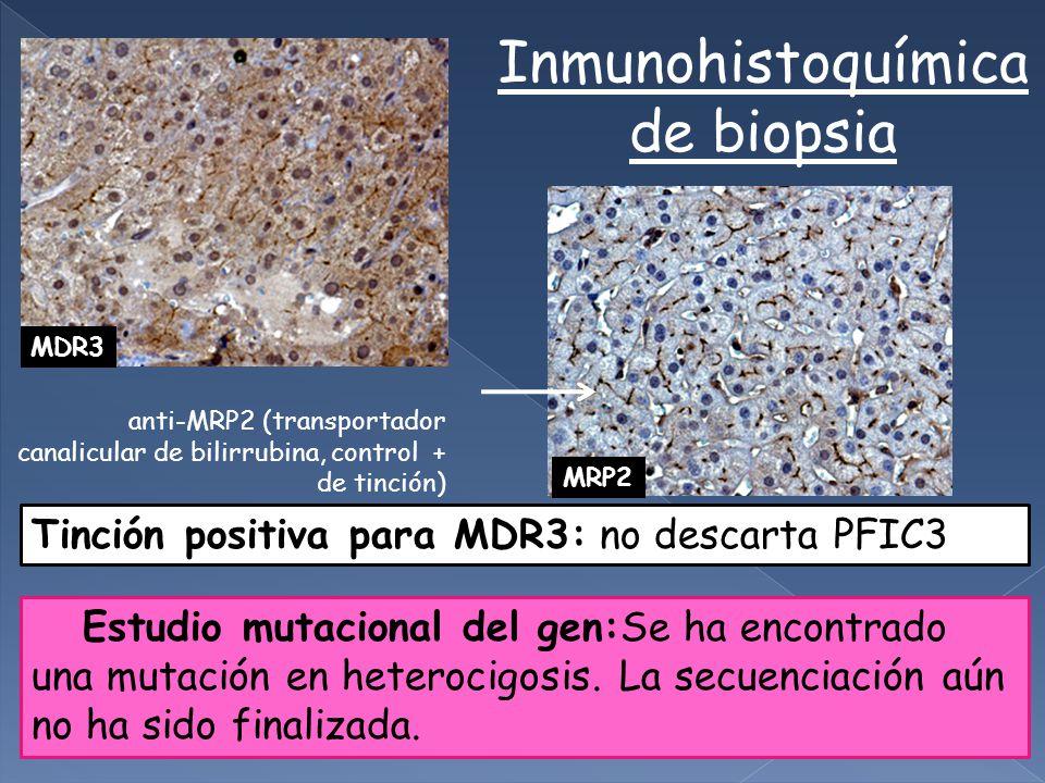 Inmunohistoquímica de biopsia