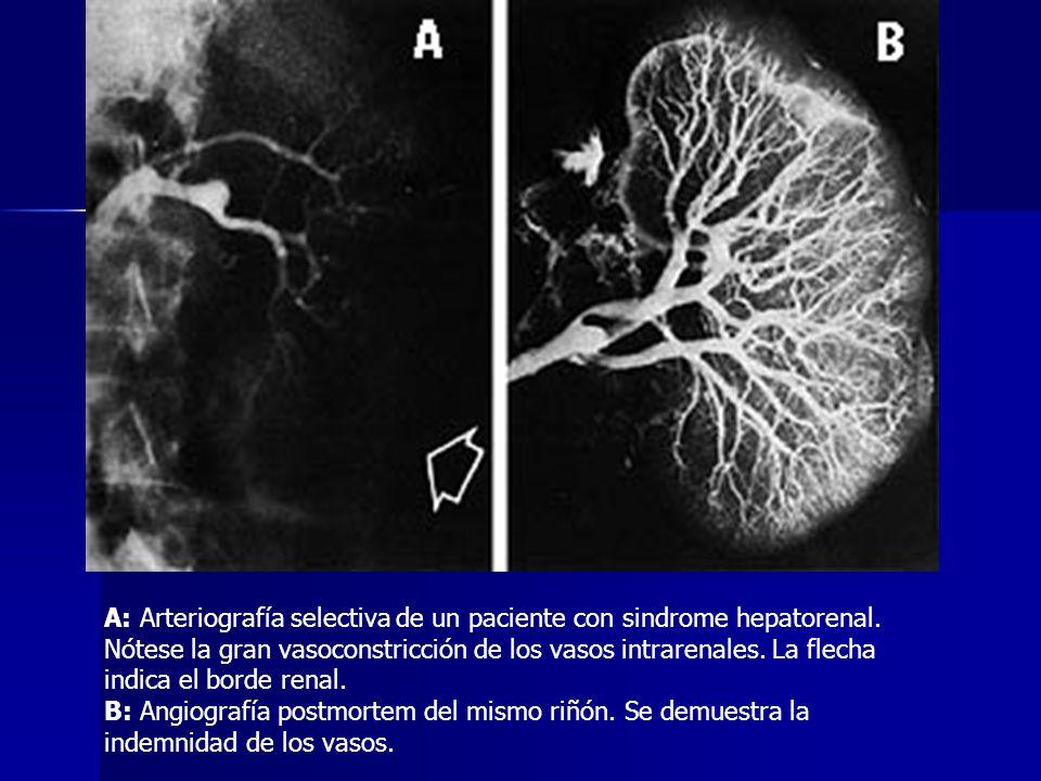 A: Arteriografía selectiva de un paciente con sindrome hepatorenal