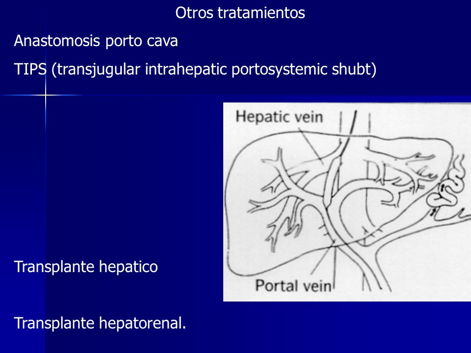 Otros tratamientos Anastomosis porto cava. TIPS (transjugular intrahepatic portosystemic shubt) Transplante hepatico.
