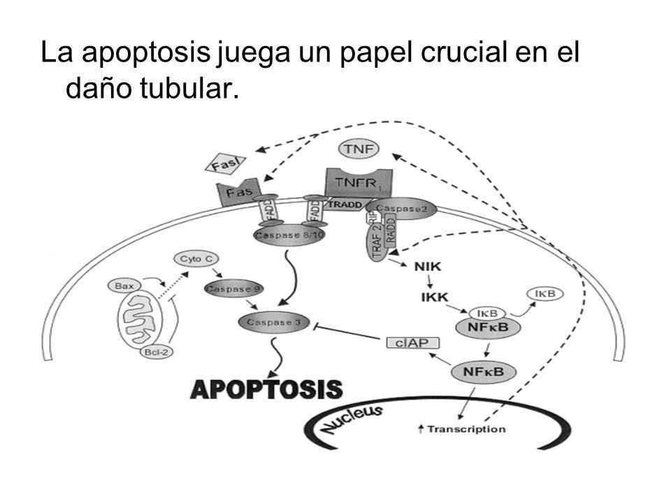La apoptosis juega un papel crucial en el daño tubular.