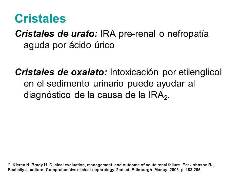 Cristales Cristales de urato: IRA pre-renal o nefropatía aguda por ácido úrico.
