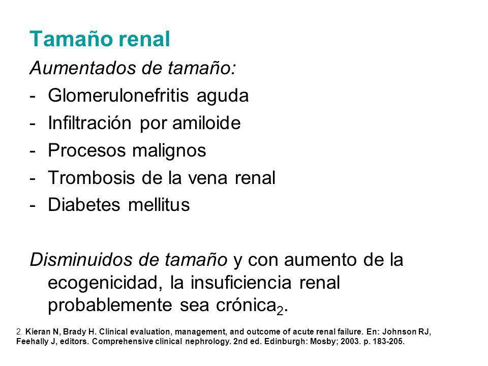Tamaño renal Aumentados de tamaño: Glomerulonefritis aguda