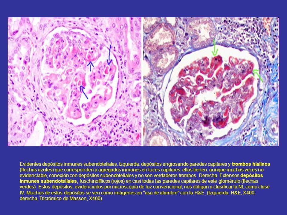 Evidentes depósitos inmunes subendoteliales
