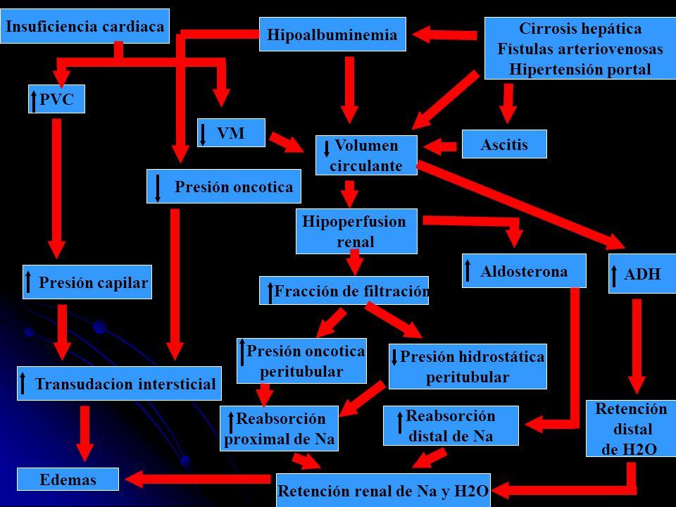 Insuficiencia cardiaca Hipoalbuminemia Cirrosis hepática