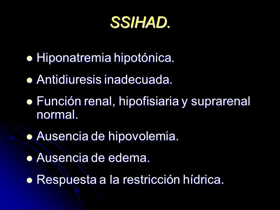 SSIHAD. Hiponatremia hipotónica. Antidiuresis inadecuada.