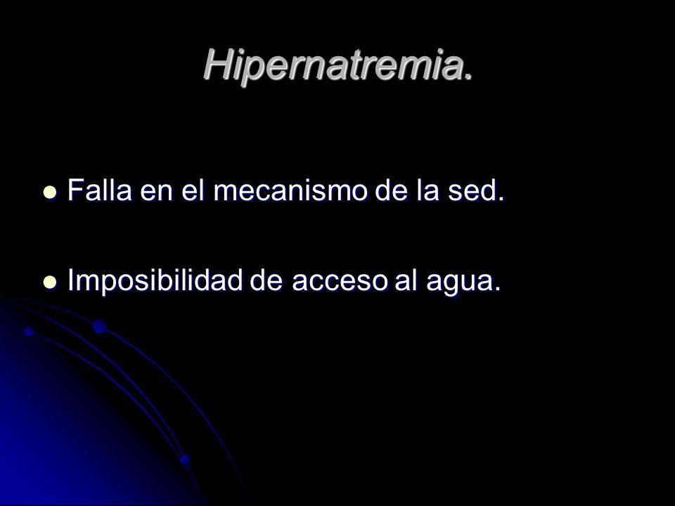 Hipernatremia. Falla en el mecanismo de la sed.