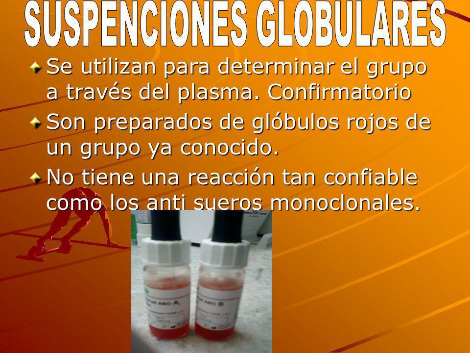SUSPENCIONES GLOBULARES