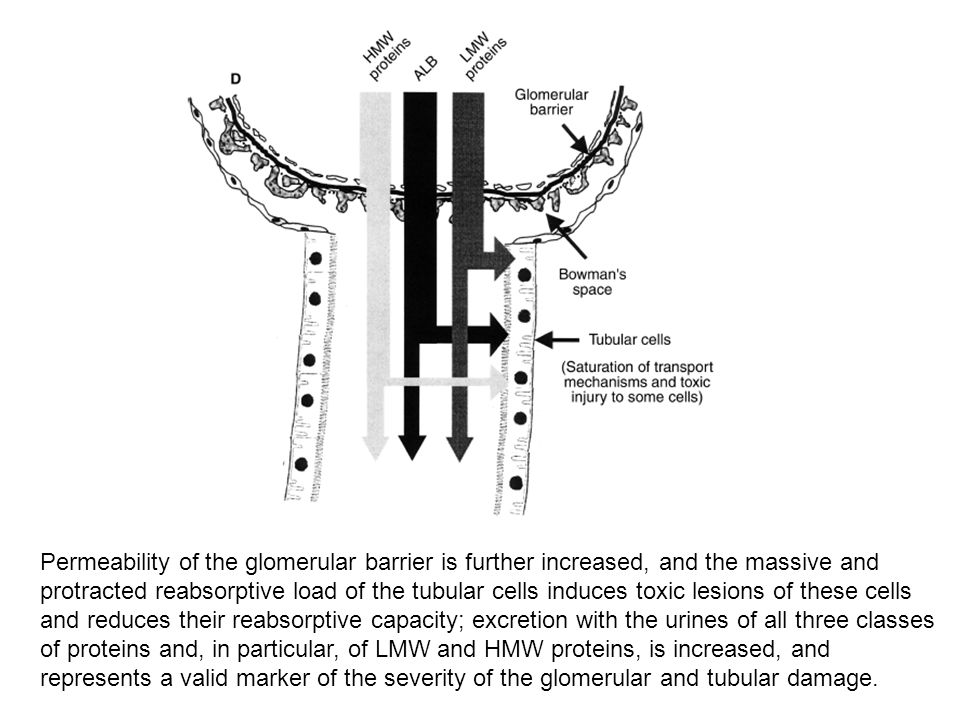Permeability of the glomerular barrier is further increased, and the massive and protracted reabsorptive load of the tubular cells induces toxic lesions of these cells
