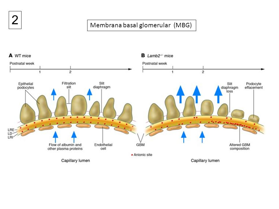 2 Membrana basal glomerular (MBG)