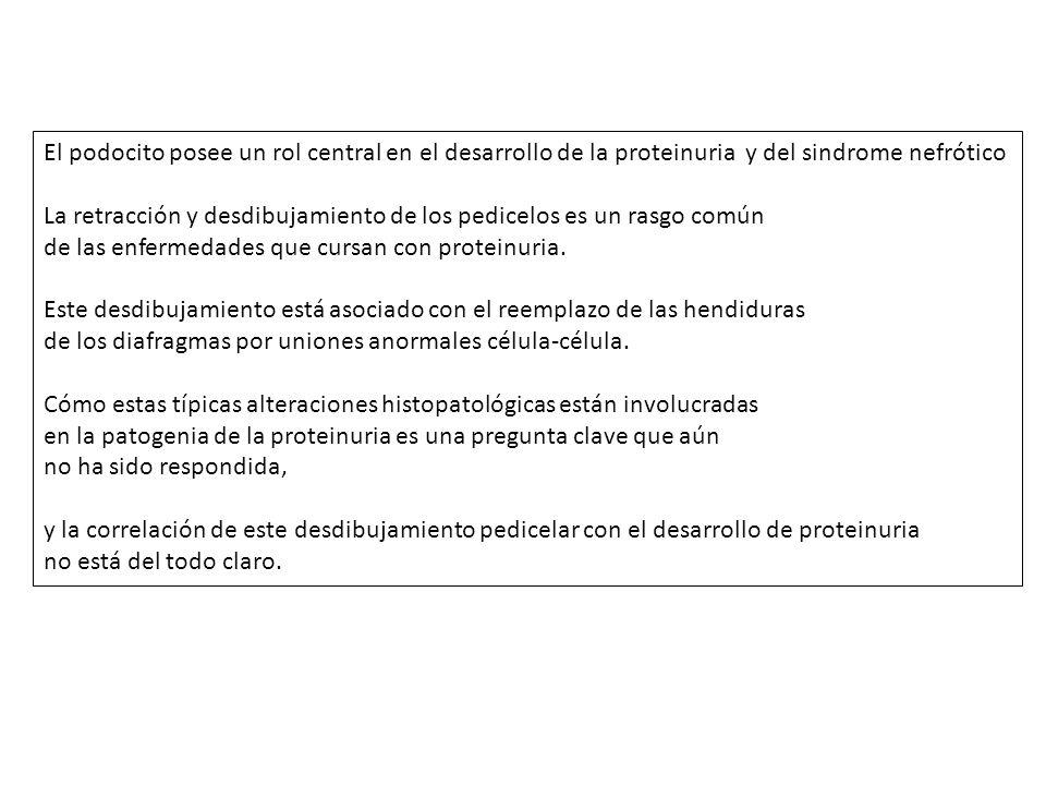 El podocito posee un rol central en el desarrollo de la proteinuria y del sindrome nefrótico