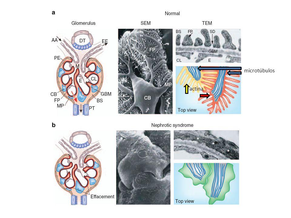 microtúbulos actina