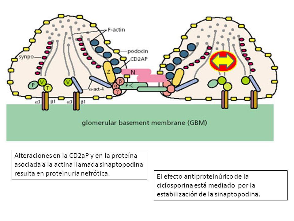 Alteraciones en la CD2aP y en la proteína asociada a la actina llamada sinaptopodina resulta en proteinuria nefrótica.